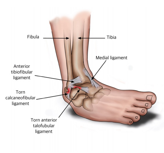 sprained ankle how to assess and recover from a sprained ankle Ankle Arthritis Diagram diagram of the ligaments affected in an ankle sprain, also known as a sprained ankle